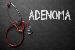 Bord met Adenoma Concept 3D Illustratie Stock Foto's