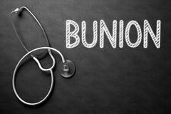 Bord met Bunion 3D Illustratie Royalty-vrije Stock Afbeeldingen