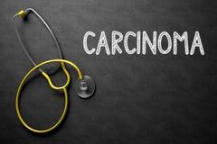 Bord met Carcinoom 3D Illustratie Royalty-vrije Stock Afbeeldingen