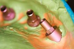Bornes da impressão do implante e impressão imagens de stock