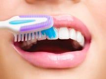 Borsta för tänder Vita sunda tänder arkivfoton