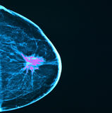 Borstkanker, mammography Stock Afbeelding