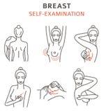 Borstkanker, medische infographic Zelf - onderzoek Vrouwen ` s vector illustratie