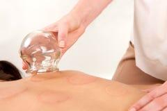 bortta för brand för acupuncturistkula kupa Royaltyfria Bilder