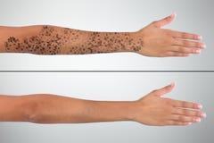 Borttagning för tatuering för laser för hand för kvinna` s före och efter arkivbilder