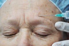 Botox de réception femelle âgé Photographie stock libre de droits