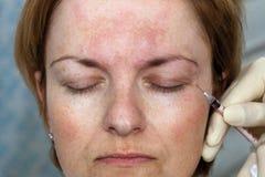 Botox Einspritzung Stockfoto