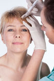 Botox injected in a forehead Stock Images