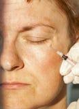 Botox injection royalty free stock photo