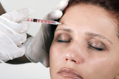 Botox injections. Cosmetic treatment with botox injection Stock Photos