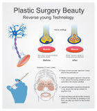 Plastic surgery beauty. Reverse young technology. Royalty Free Stock Photo