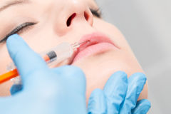 Botox woman fillers spa facial young treatment syringe. Injecting injection skin lips concept - stock image stock photos