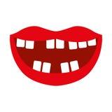 Bouche avec de mauvaises dents Photographie stock
