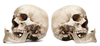 bouche Crâne-ouverte, mâchoire cassée images libres de droits