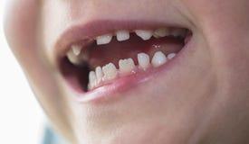 Bouche d'un garçon avec la dent absente Photographie stock libre de droits
