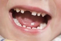 Bouche d'un garçon avec la dent absente Image stock