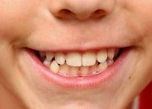 Bouche haute étroite de sourire de dents blanches fortes d'enfant photographie stock libre de droits