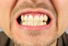 Bouche masculine, grimace de dent Image libre de droits