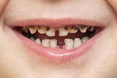 Bouche ouverte patiente d'enfant montrant la décomposition dentaire de cavités Fermez-vous des dents de lait malsaines Médecine d image stock