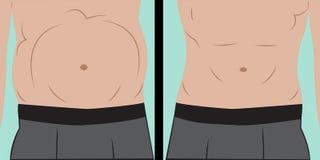 Boursouflage abdominal Illustration Libre de Droits