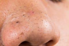 Boutons, acné, bouton et points noirs laids sur le nez d'un adolescent Photos stock