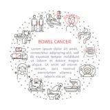 Bowel cancer illustration Stock Images