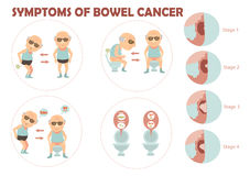 Bowel cancer. Old man suffered colon cancer and charts the growth of tumors in the colon infographic.Vector illustration Royalty Free Stock Photo
