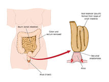 Bowel removed and rectal pouch. Drawing of an ileo-rectal pouch made from ileum following bowel removal Royalty Free Stock Photo