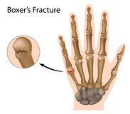 Boxer's fracture Stock Images