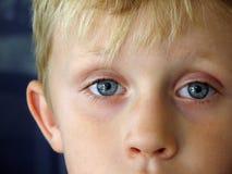 A Boy. Closeup of blue eyes of a blond little boy. Portrait stock photography