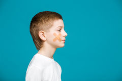 Boy with adhesive plaster on his cheek Stock Image