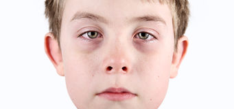 Boy with allergic shiners royalty free stock images