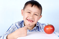 Boy with apple without several tooth's Stock Photography