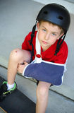 Boy with arm in a sling from a broken humerus. A young boy sits on the curb with his skateboard wishing he could ride it -- but he has a broken arm stock photo