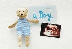 A Boy Baby Shower ultrasound stock images