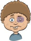 Boy with Black Eye. A cartoon boy with a painful, swollen black eye Royalty Free Stock Photos