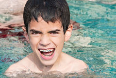 Boy with braces royalty free stock images