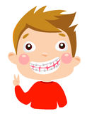 Boy with braces on teeth laughing with joy Stock Image