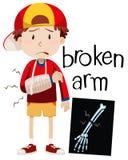Boy with broken bone and x-ray. Illustration stock illustration