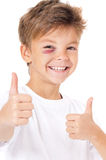 Boy with bruise. Portrait of happy boy with bruise, showing thumbs up gesture, isolated on white background Stock Images