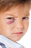 Boy with bruise Stock Images