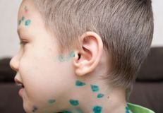 Boy with chicken pox Royalty Free Stock Images