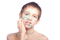 Boy with the Chickenpox's Royalty Free Stock Image