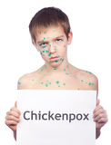 Boy with the Chickenpox's Royalty Free Stock Photography
