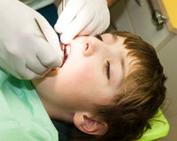 Boy on dental examination. Young boy on dental examination Royalty Free Stock Photo