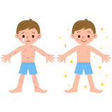 Boy with and without dermatitis Stock Photography