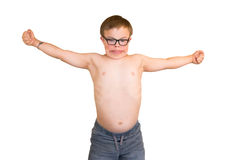 Boy With Downs Syndrome Flexing His Muscles Stock Images
