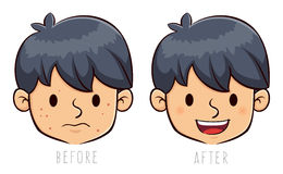 Boy Face With Acne Problem Before And After Stock Images