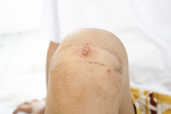 Boy fell pain from his wound on knee Stock Photo