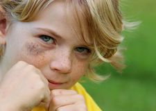 Boy fighting black eye Stock Photo